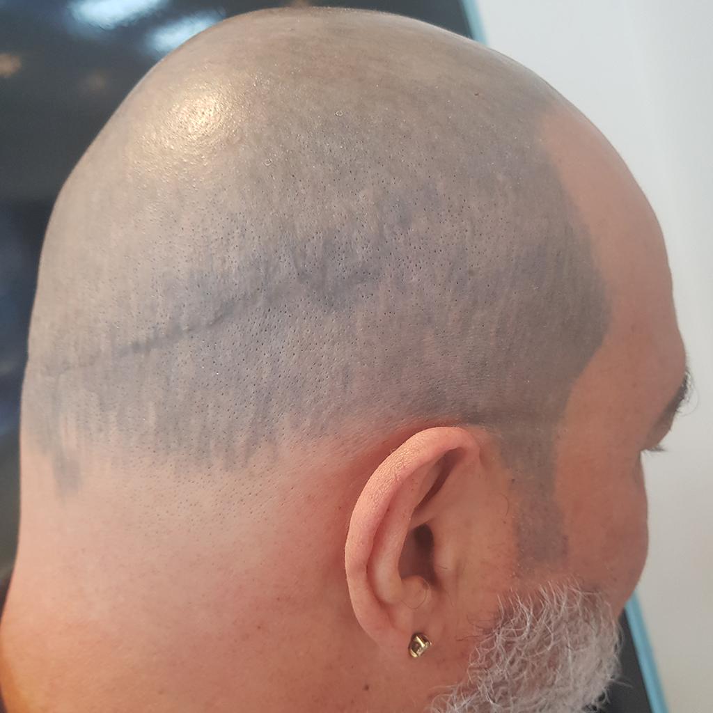 Before-Remoção de Tatuagem