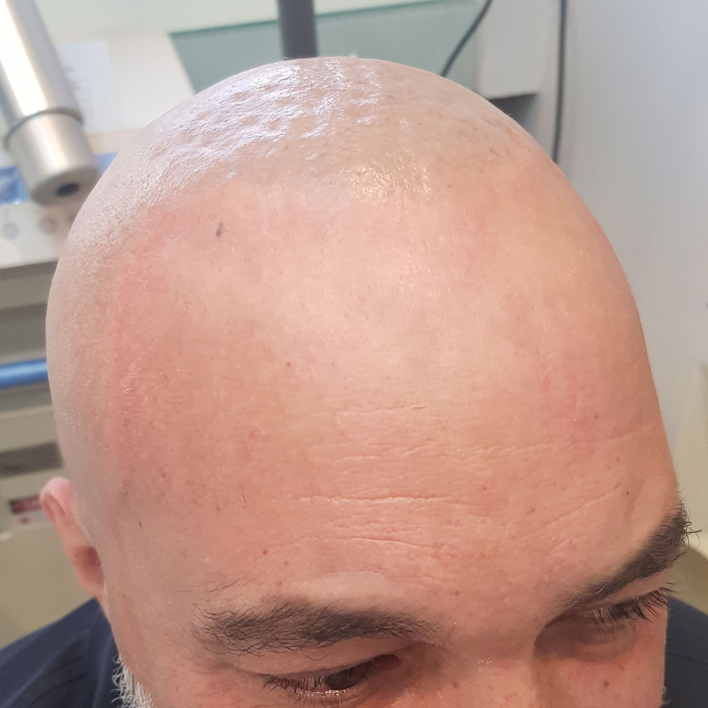 After-Remoção de Tatuagem