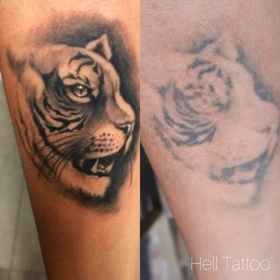 remoção de tatuagem de tigre no braço