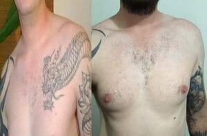 dicas para evitar cicatrizes apos remover tatuagem