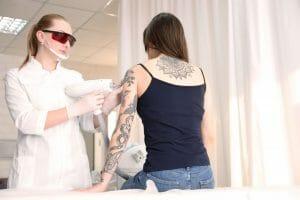 Remoção de tatuagem colorida