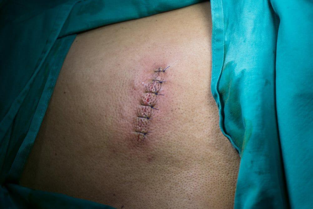 cirurgia para remover tatuagem