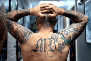 Deseja apagar uma tatuagem