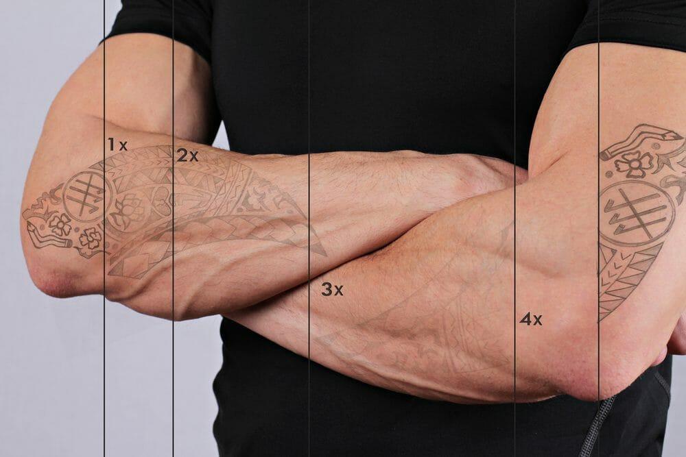 10 Dicas que você precisa saber antes de remover sua tatuagem