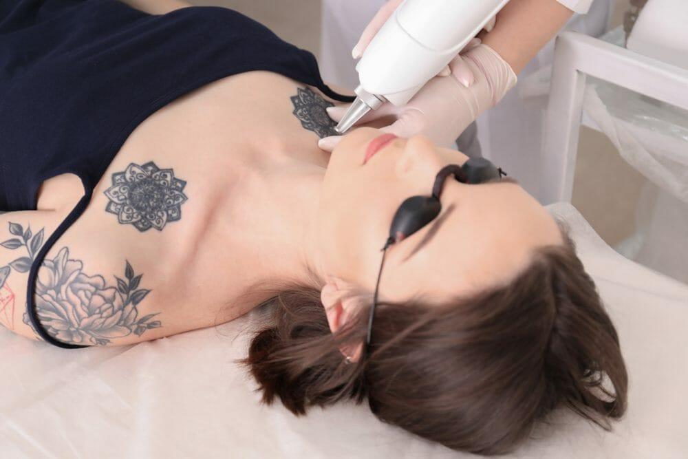sucesso na remoção completa da tatuagem