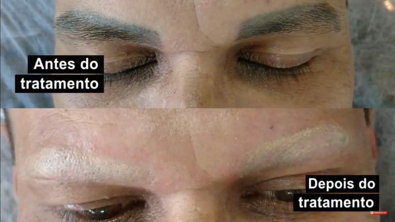 Remover Maquiagem Definitiva a Laser