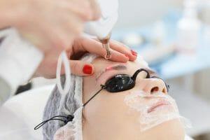 remoção de tatuagem na sobrancelha