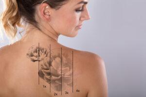 quanto tempo para remover uma tattoo