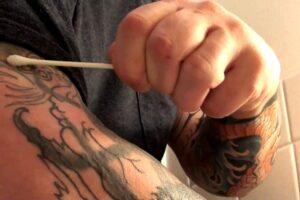 remover tatuagem com peeling ácido