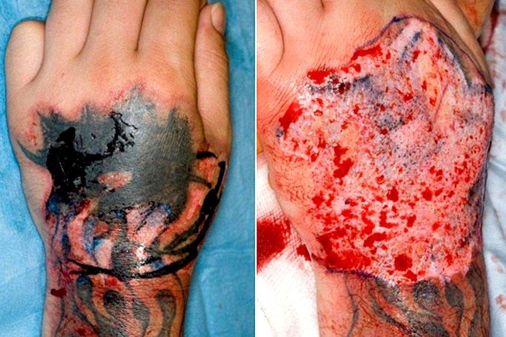 riscos associados a tatuagem