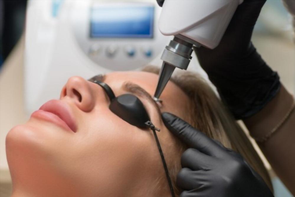 como remover micropigmentação