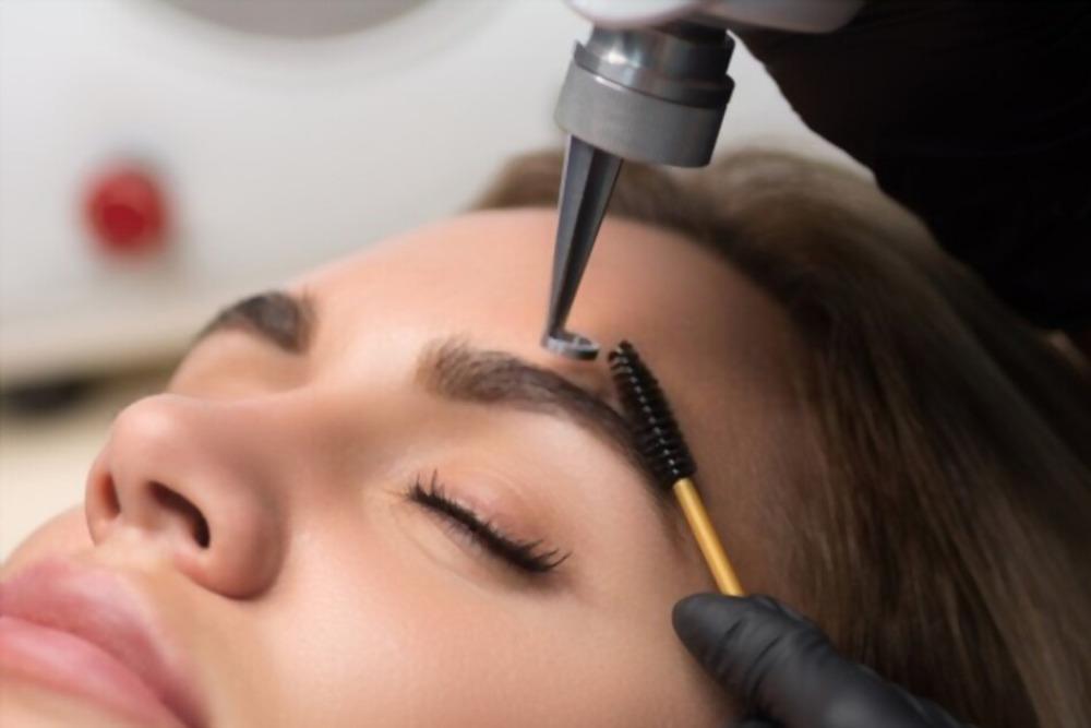 despigmentação de sobrancelhas a laser