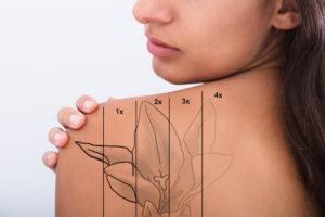Métodos caseiros de remover tatuagem