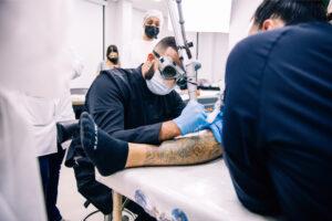 remoção de taatuagem colorida a laser
