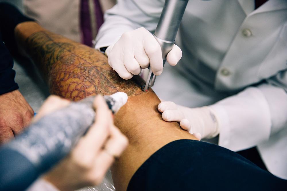 remoção de tatuagem com laser ruby